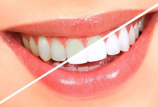 Conoce todo sobre los distintos tipos de blanqueamiento dental que existen - tipos-blanqueamiento-dental-300x203