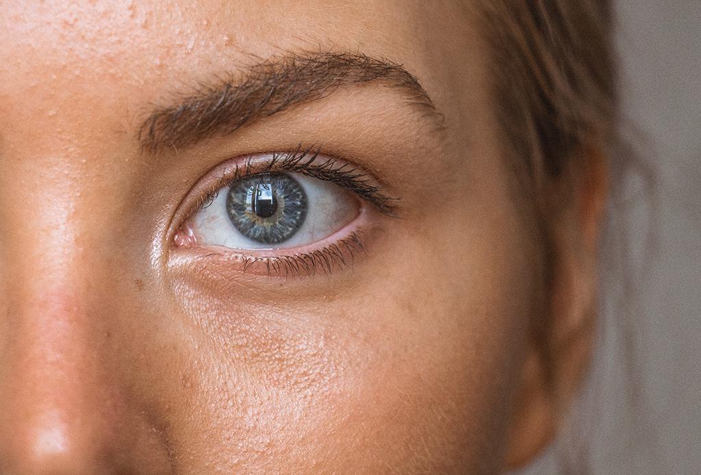 Esto es lo que realmente le pasa a tu piel cuando consumes alcohol - piel-alcohol-4