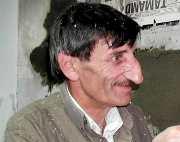 One giant nose--Mr Mehmet Ozyurek