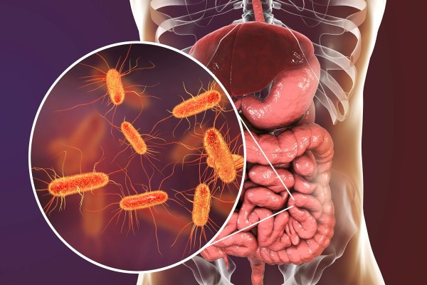A New Type of Gut Bacteria can Identify Pulmonary Arterial Hypertension (PAH) in Humans - TheHealthMania