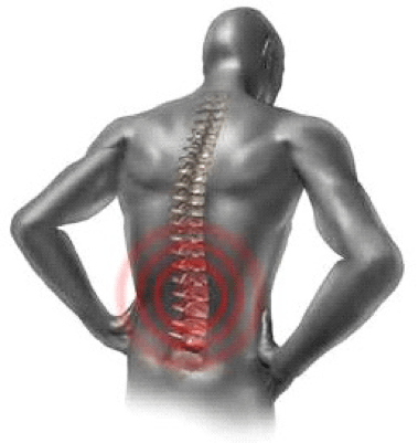 Image of pain radiating from the lower back