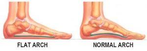 Diagram of flat feet