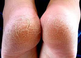 Image of cracked feet