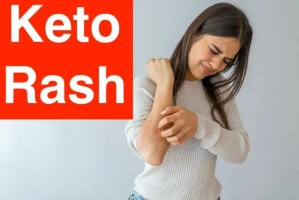 What To Do About Keto Rash (Pruigo Pigementosa)