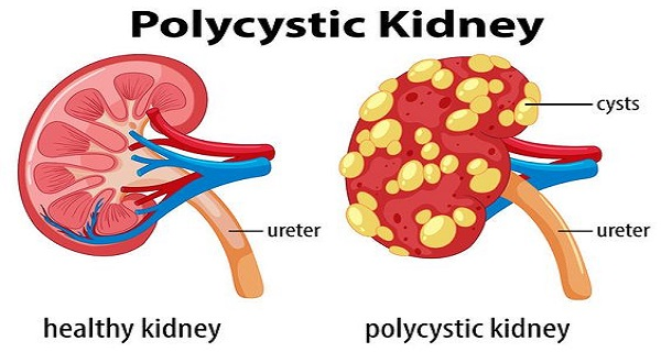 Polycystic Kidney Disease Treatment Symptoms And Causes Healthyville