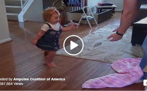 She's Learning To Walk On Her Prosthetic Leg And We Can't Stop Cheering For Her