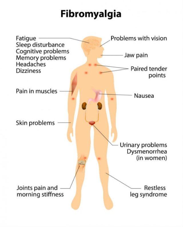 cannabis patch to treat fibromyalgia
