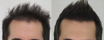 What's the dissimilarity between thinning hair and usual thinning hair?