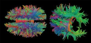 """from the """"Beauty of the Brain"""" from the Smithsonian Institute"""