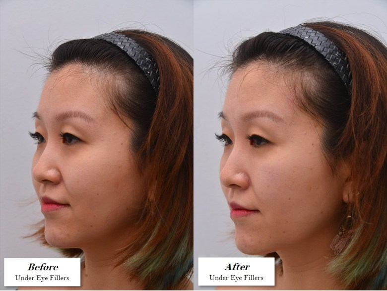 under eye fillers before and after pictures