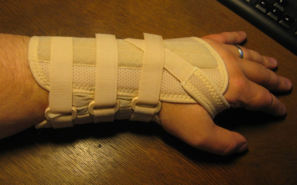 Arm in Cast