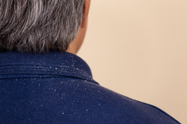 close-up-view-man-who-has-lot-dandruff-from-his-hair-his-shirt-shoulders