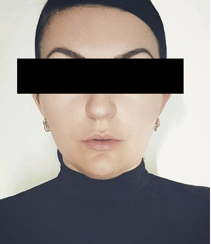 Blocked Out Eyes
