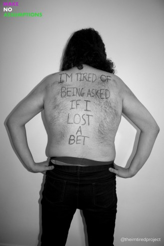 """""""I'm tired of being asked if I lost a bet."""""""