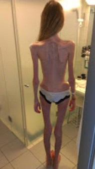 Anorexia nearly killed me