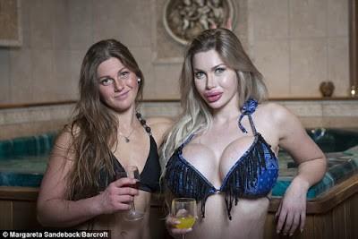 26-year-old Swedish glamour model has undergone