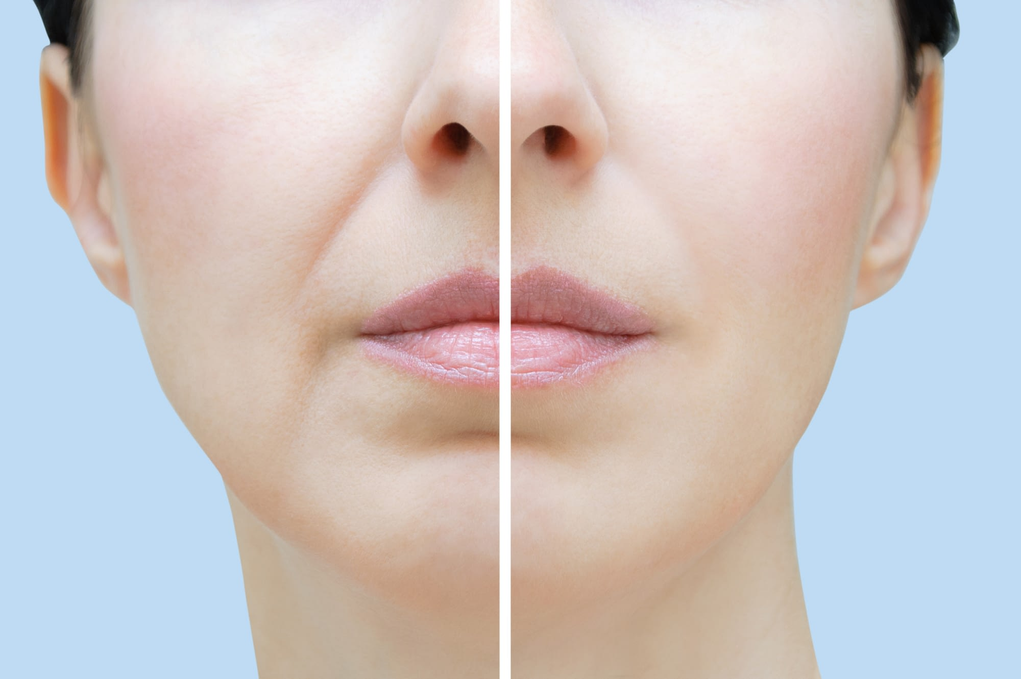 Eliminating Skin Folds and Wrinkles with a Facelift