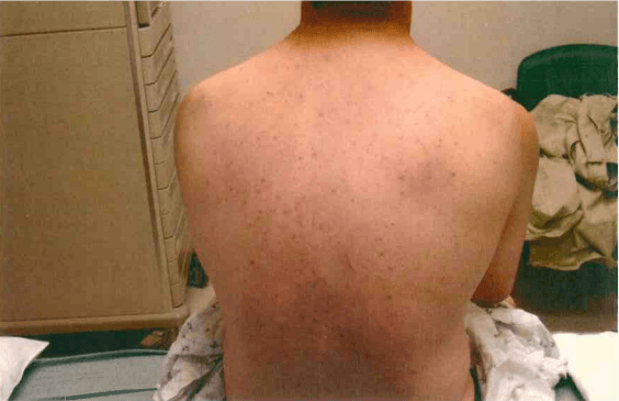 Scratches on Bobby Dassey's Back