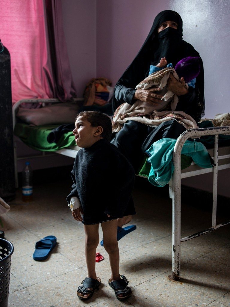 Ahmad Ghalib, 6, stares into the distance on May 4, 2018 at Sabaeen Hospital in Sana'a, Yemen. His mother claims he has been malnourished since the war started three years ago, since his father lost work and they haven't been able to buy enough nutritious food. Likely due to his malnutrition, he show signs of severe mental handicap as well.