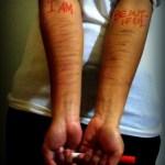 The scars I wear