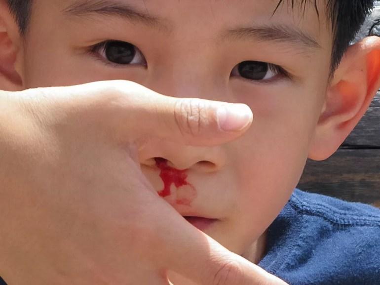 Does Nose Bleeding Break Fast