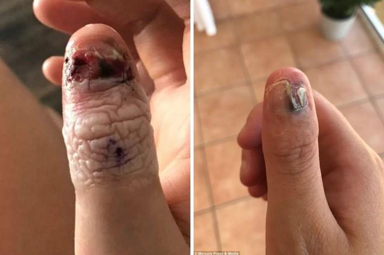 nail biting habit cancer