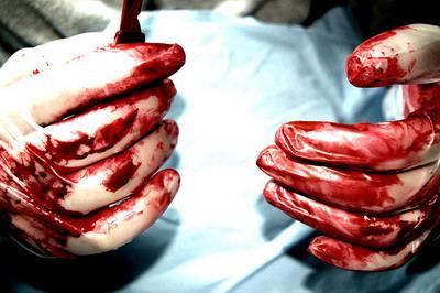 organ-surgen