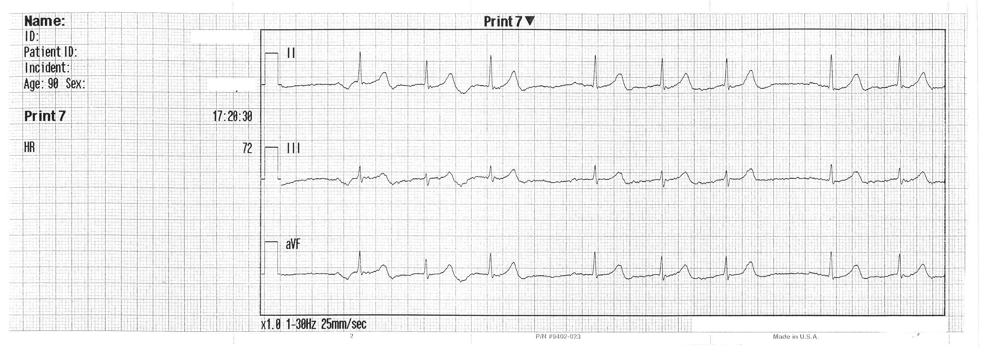 Case Stu S In Ekg Pathology