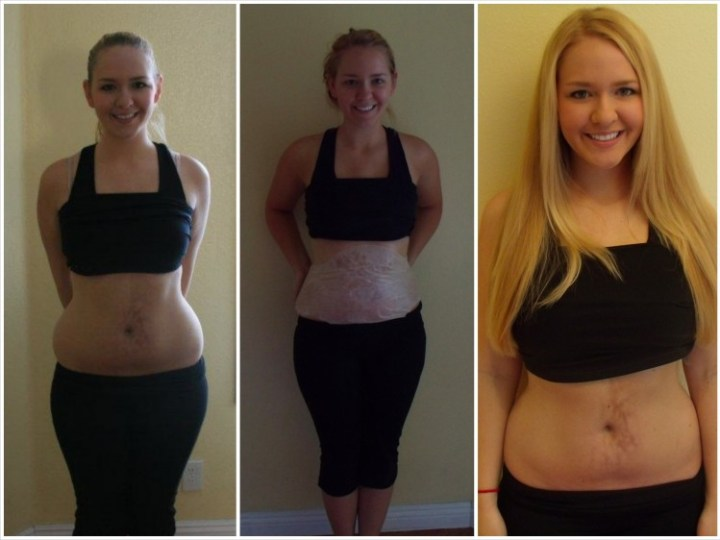 It-Works-Before-and-After-Picture-Review-750x562
