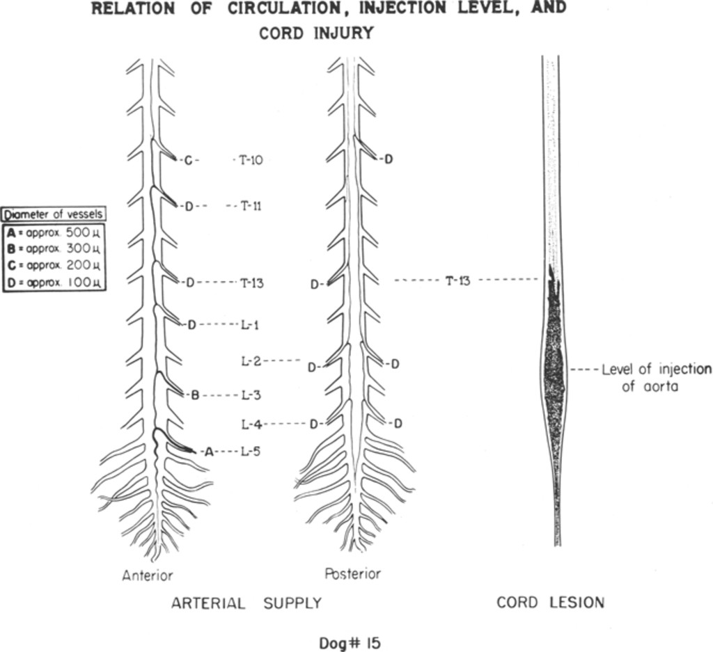 Contrast Medium Injury To The Spinal Cord Produced By