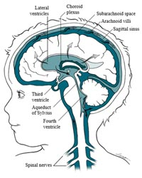 Prenatal Hydrocephalus –Information guide for Parents!c