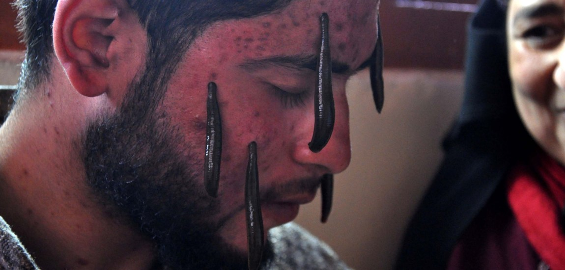 A tradition that still exists: On Nauraz, a youth undergoes traditional leech therapy…