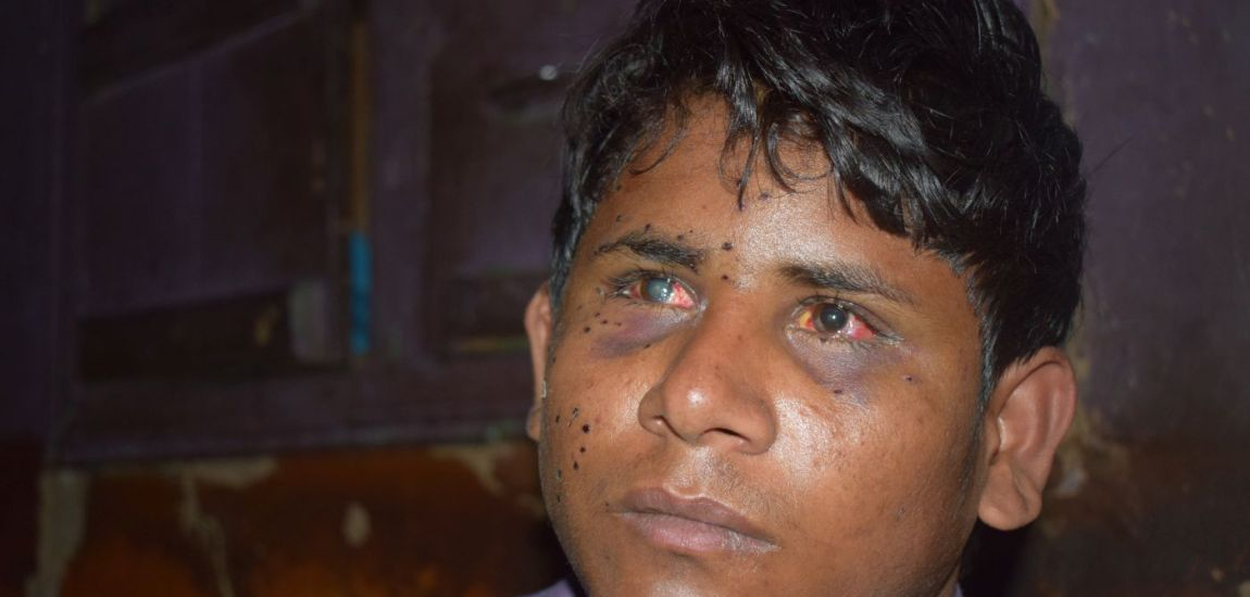 Teenage Bihar labourer loses right eye after being hit by pallets in Pulwama