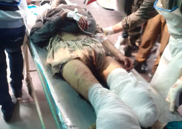 A man, badly injured in cross LoC shelling in Uri…