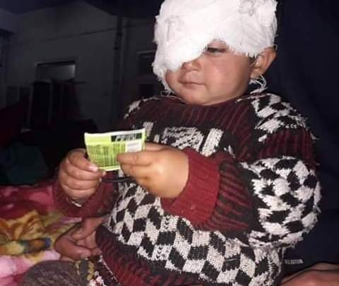 After forces fire pellets at little girl Hiba, Govt provides one lakh Rupees assistance for her eye treatment