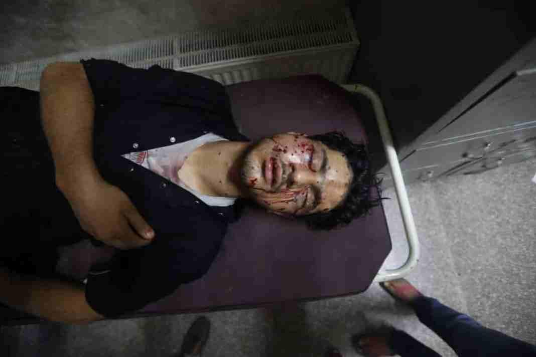 Kashmir, Muharram procession kashmir, kashmir police pellets, kashmir pellet injured
