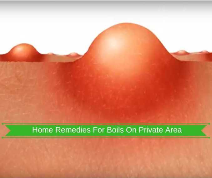 Home-Remedies-For-Boils-On-Private-Area
