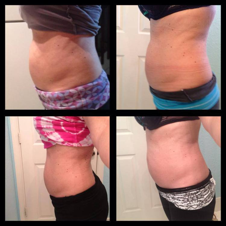 Diy At Home Weight Loss Wrap: Do It Yourself Body Wrap It Works