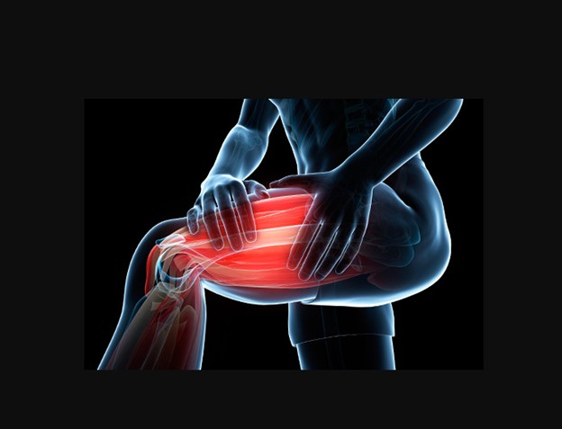 CBD for Muscle Spasms and Other MS Symptoms 3