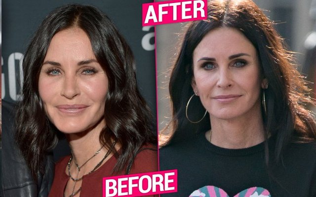 Before After Courteney Cox Removes Facial Fillers That Made Me Look Fake The Life Times Of Hollywood