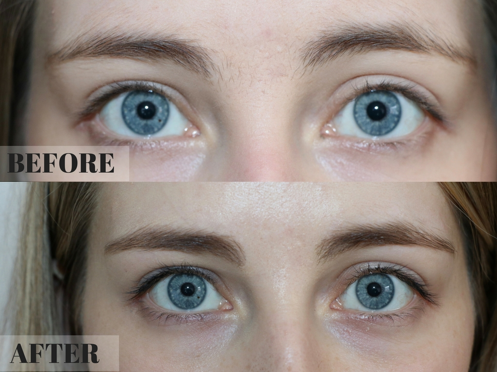 Jan Lane Beauty Therapist: Brows Before & After