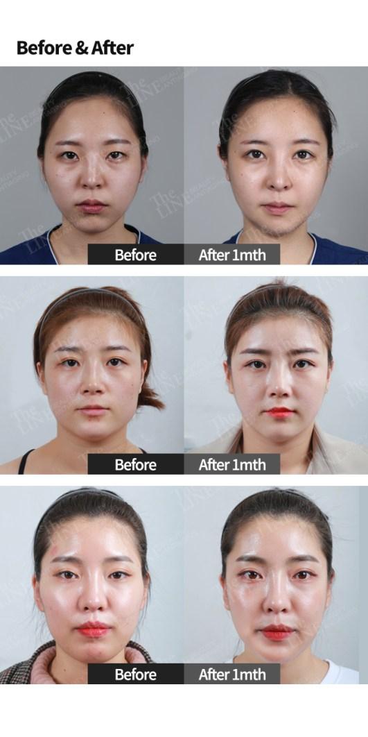 Facial Contouring Surgery Korea: 3D Cheekbone, Face Sculpting - The Line  Clinic