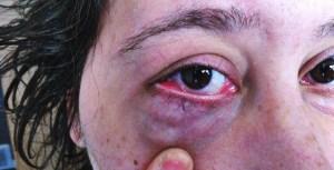 V eye bumps