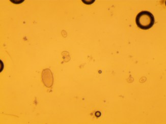 Strongyle and coccidia eggs found during a fecal egg count