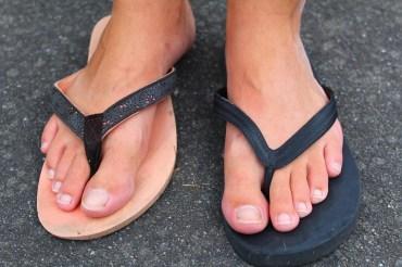 Jade's sad, odd, mismatched flip-flops. Embrace homeless chic