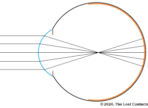 Ray Diagram of High Myopia