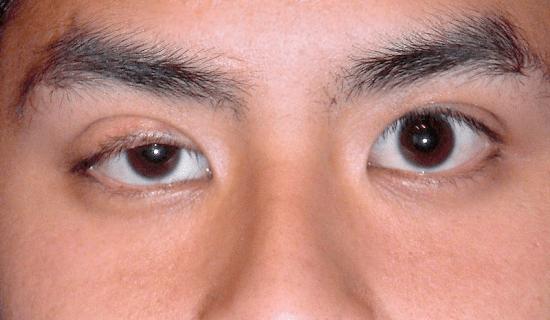 right eye ptosis