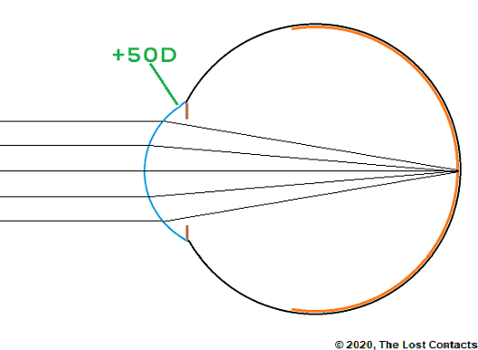Ray Diagram of the eye with no crystalline lens