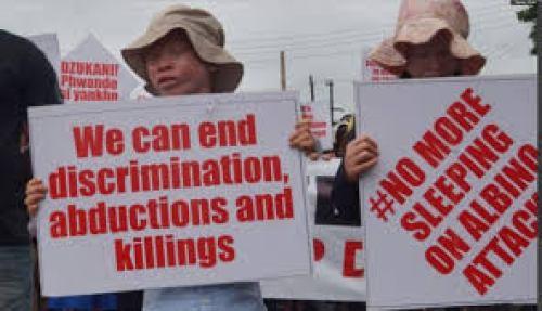 albino killings in malawi