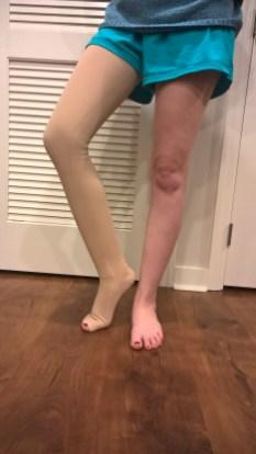 Mediven 550 thigh-high.